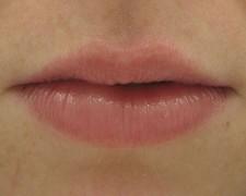 Femme, 26 ans, lèvres Après 6 semaines