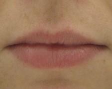 Femme, 26 ans, lèvres Avant