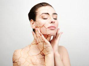 Peau sèche ou peau déshydratée : comment repérer la différence ?